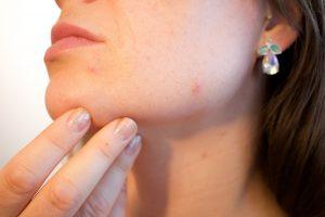 La photothérapie, la nouvelle arme anti-acné et anti-imperfection !