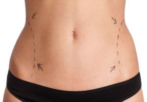Tout ce qu'il faut savoir sur l'abdominoplastie